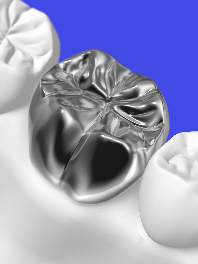 銀歯のリスク