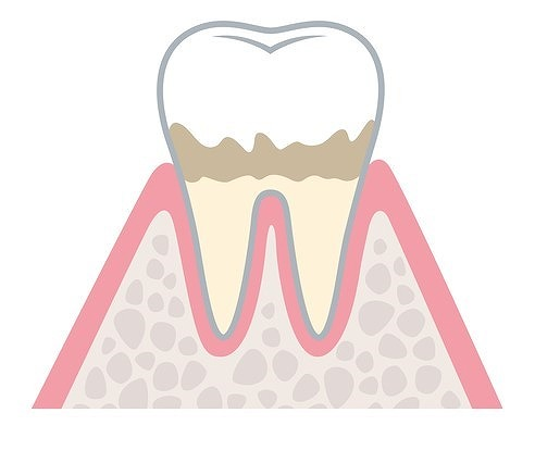 ステージ1:歯肉炎