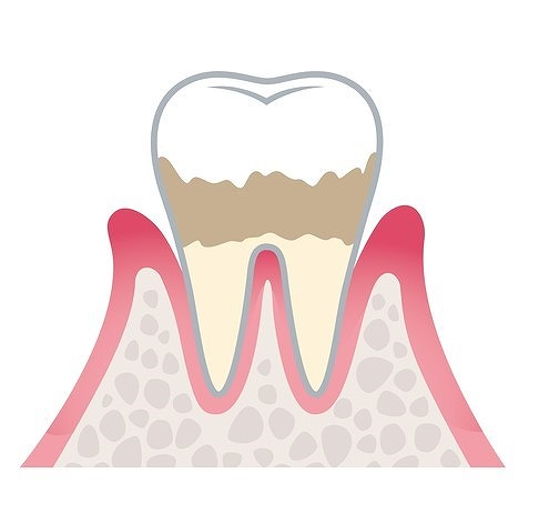 ステージ2:軽度歯周炎