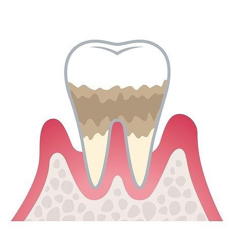 ステージ3:中度歯周炎