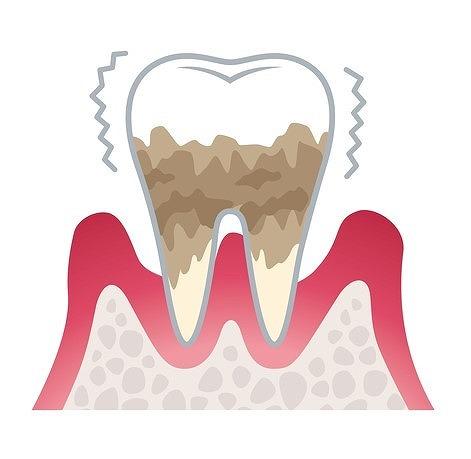 ステージ4:重度歯肉炎