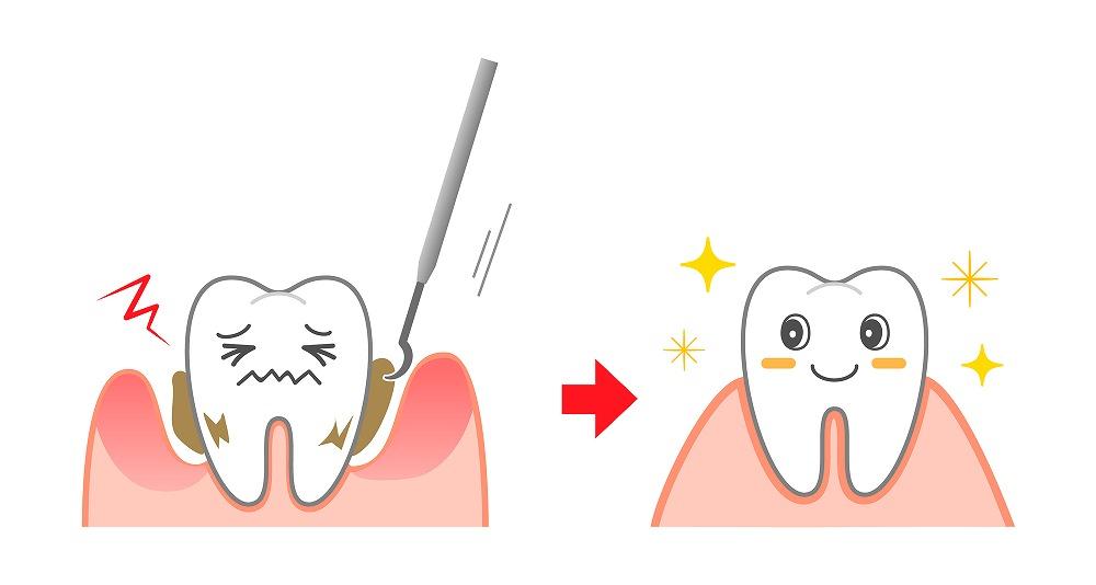 歯垢と歯石の除去